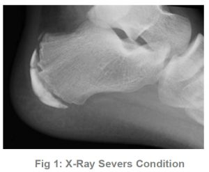 X-ray Severs Condition