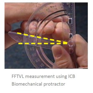 Biomechanical protractor