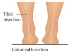Calcaneal bisection