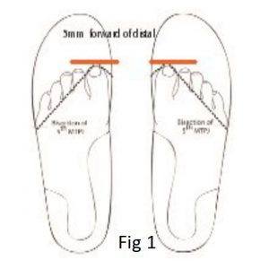 Foot in Podiatry Tibial torsion