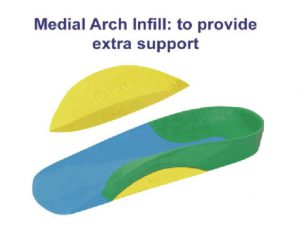 Medial Arch Infill on ICB Orthotic
