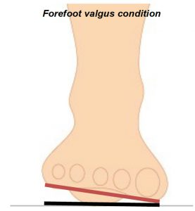 forefoot valgus condition