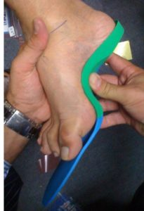 Fitting an orthotic