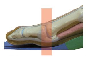 Foot Orthotic