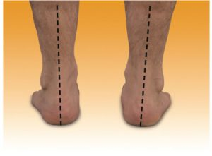 Measuring Orthotics