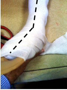 foot and orthotic is wrapped in a bandage