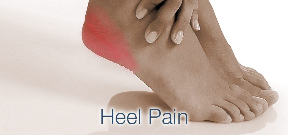 Heel Pain Management
