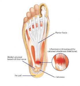 Inflammation and tearing at the heel bone