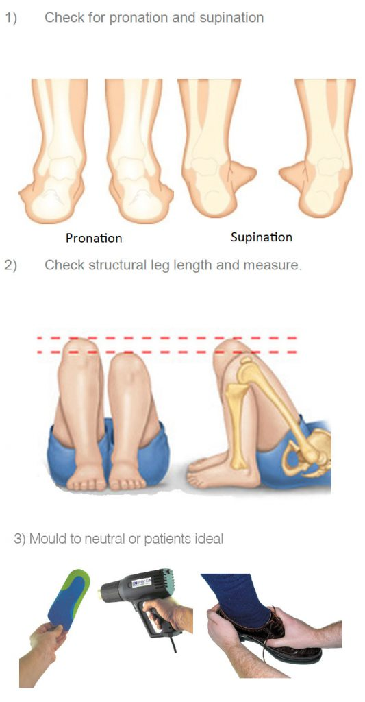 Check for pronation and supination