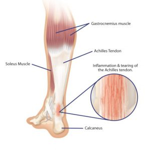 Achillies Tendonitis